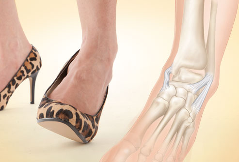 webmd_rf_photo_of_ankle_sprain_risk