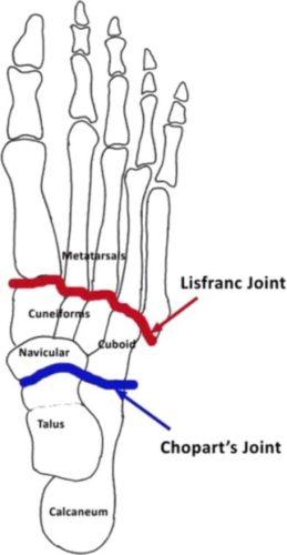 lisfranc-injury